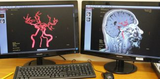 Device for rehabilitation after a stroke has created in Russia